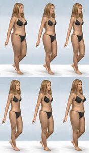 Non riuscire a perdere peso o aumentare di peso